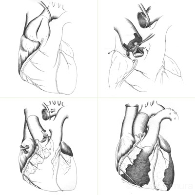 HEART VALVE   Commissioned Science Art for Univ. of MN Cardiology Dept