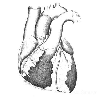 HEART VALVE DETAIL   Commissioned Science Art for Univ. of MN Cardiology Dept